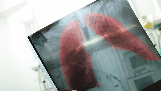 肺癌 (10).jpg