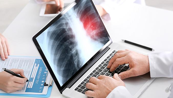 肺癌 (55).jpg