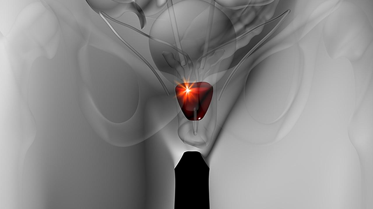 睾丸疼痛的原因