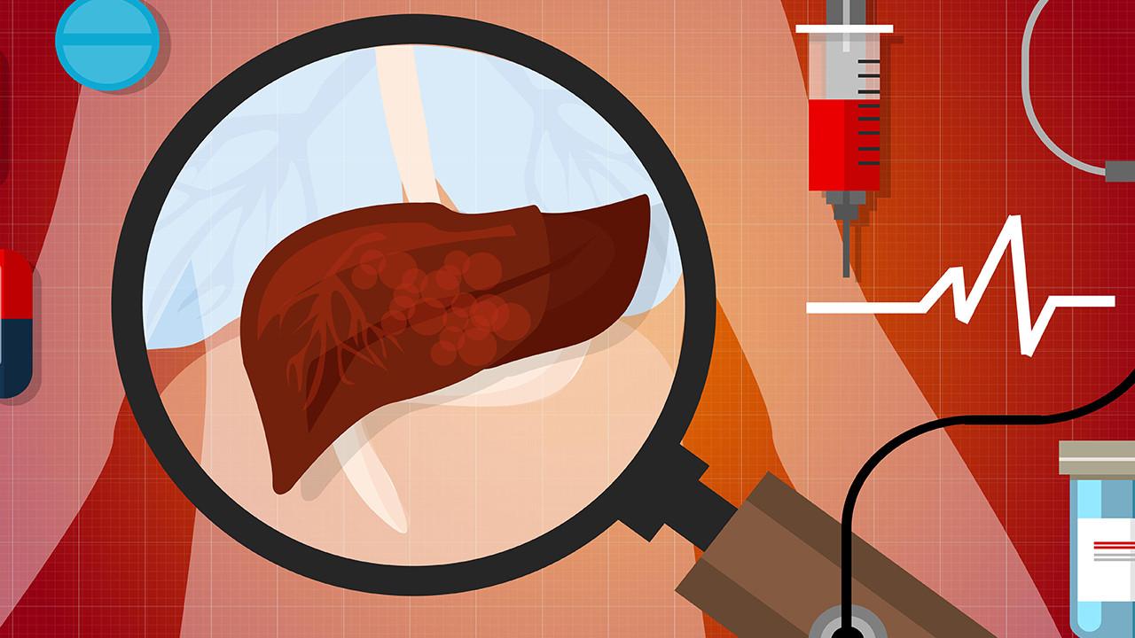肝脏血管瘤严重吗
