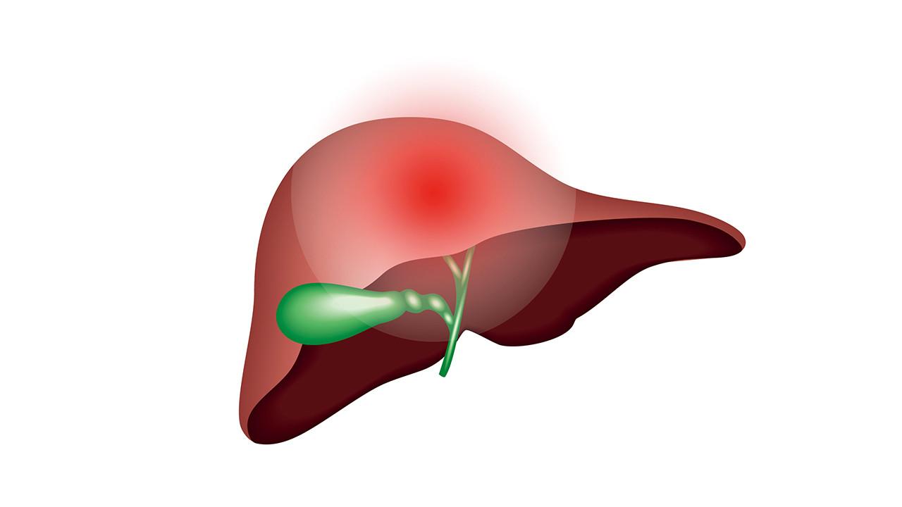 肝内胆管结石的症状