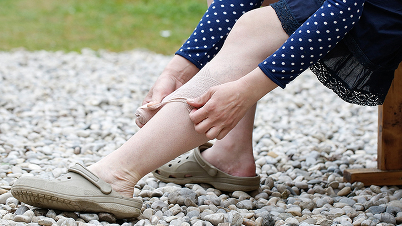 下肢静脉曲张预防措施