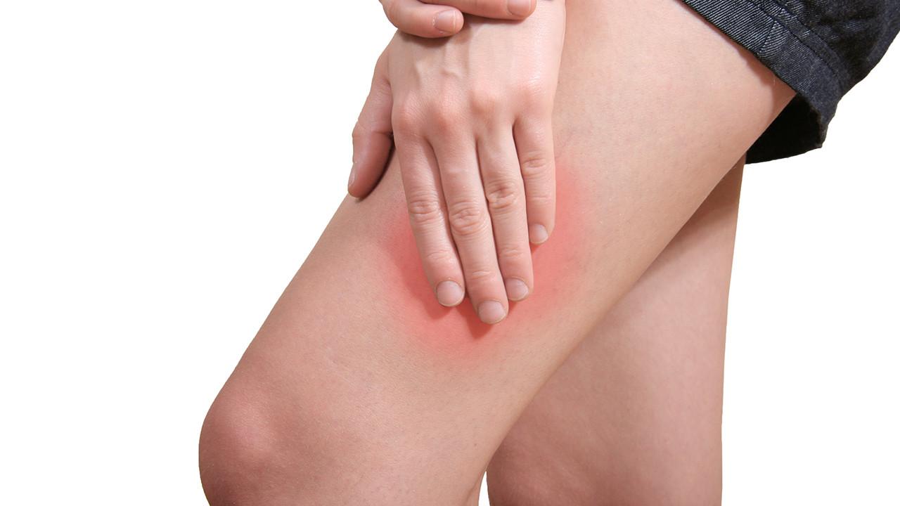 下肢静脉曲张会导致截肢吗