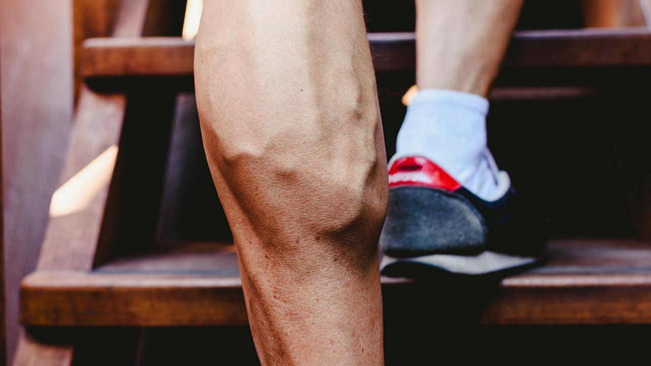 下肢静脉曲张怎么检查