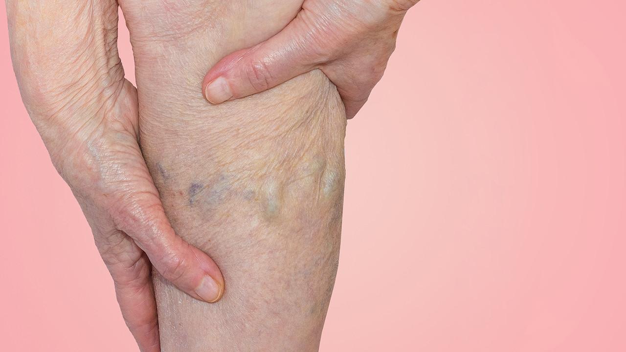 下肢静脉曲张微创治疗