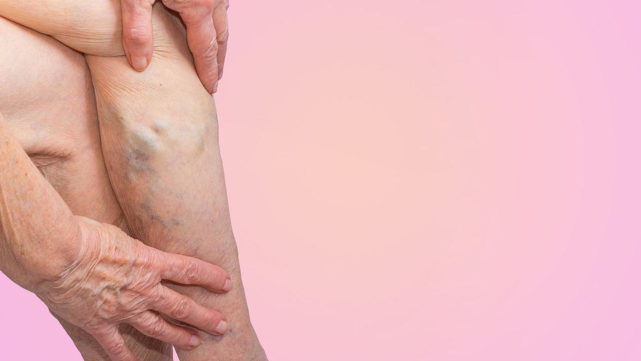 下肢静脉曲张的临床表现