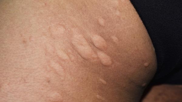 体質 改善 蕁 麻疹 寒冷