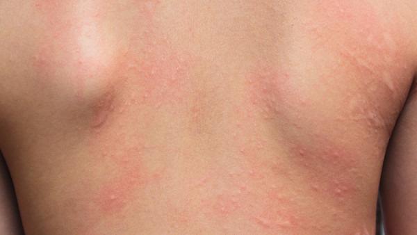 全身 蕁 麻疹