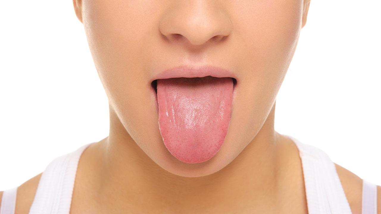 癌 初期 症状 舌