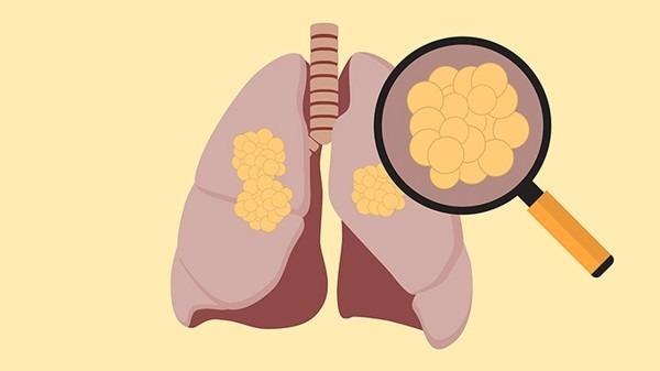 卫健委首次发布医疗质量改进目标 推进全国肺栓塞建设项目启动