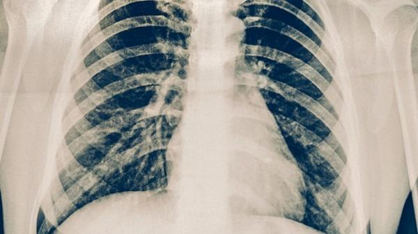 慢性支气管炎属于慢阻肺吗?慢性支气管炎怎么发展为肺气肿?