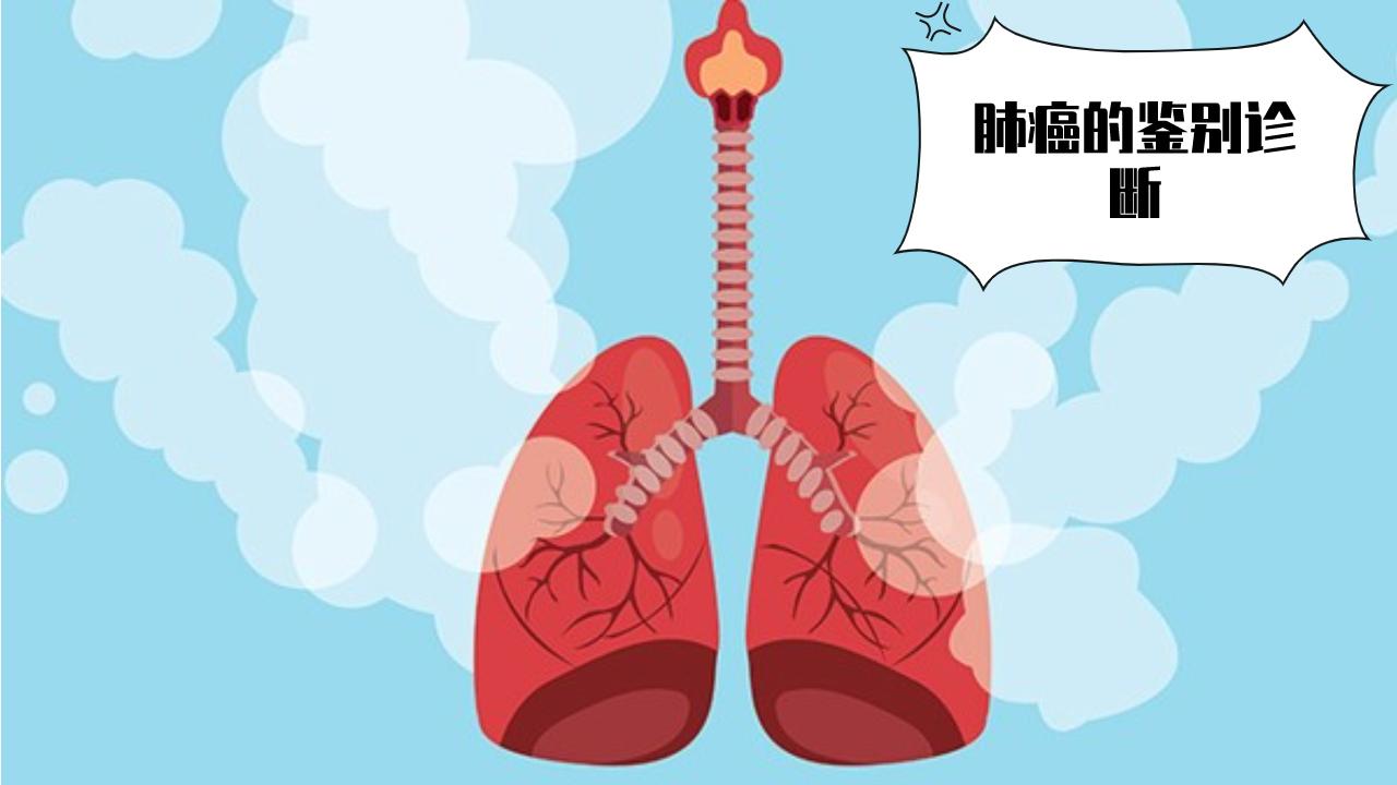 肺癌的鉴别诊断