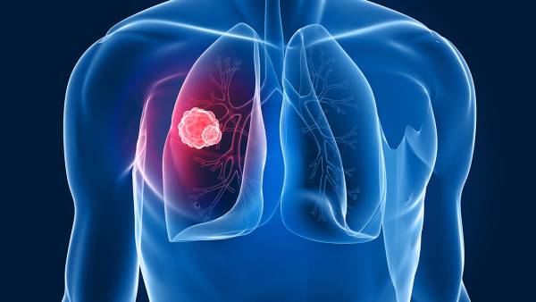 胳膊疼可能是肺癌?肺癌早期症状有哪些?