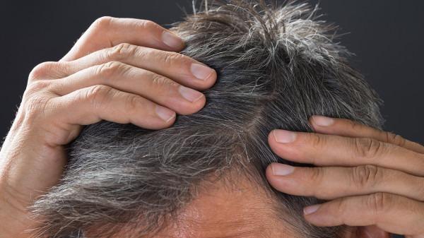 年纪轻轻就长白头发是肾不好吗 人不老先白头可能有三方面