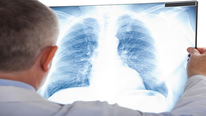 什么是肺癌胸腔镜手术.jpg