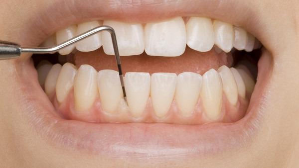 牙齿出血是什么原因