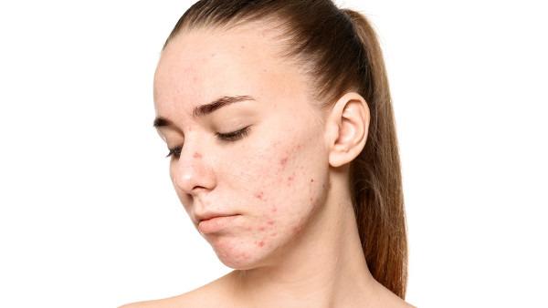 嘴角长痘痘是什么原因